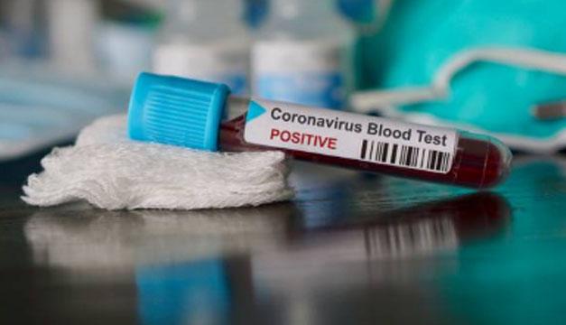 Gobierno autorizará realizar pruebas de Covid-19 a cuatro hospitales privados